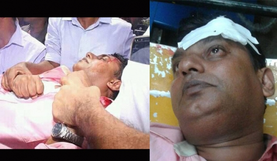 CTSU chairman injured (pics)